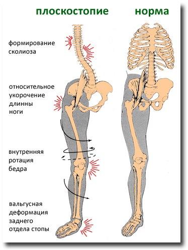 Причина болей в тазобедренном суставе