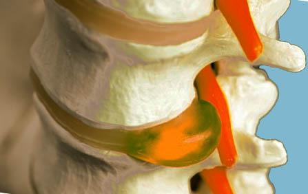 новая остеопатия по методу толстоносова