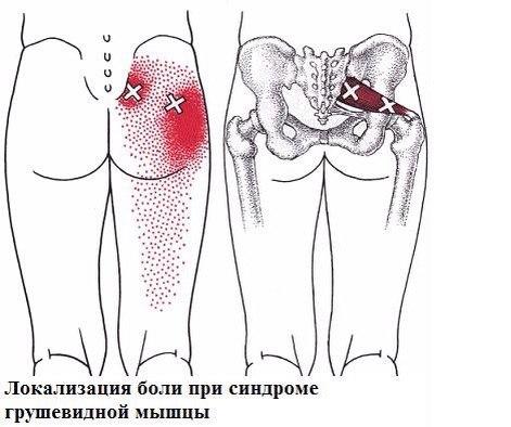 Из-за чего может болеть ягодица и отдавать в ногу